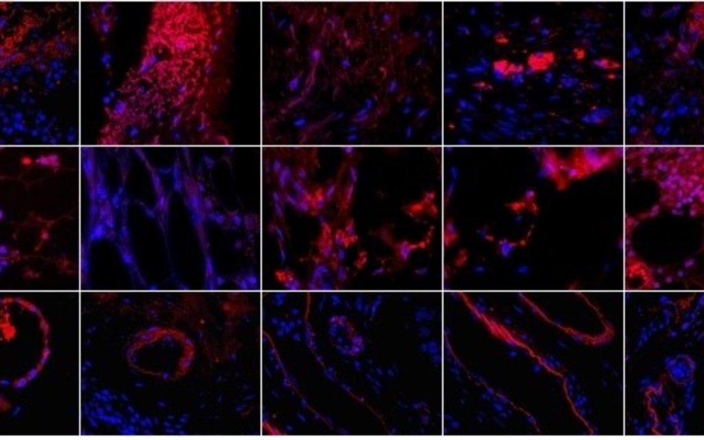 angiogeneza2